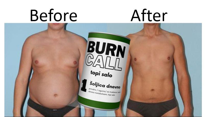 Burn Call Kupiti