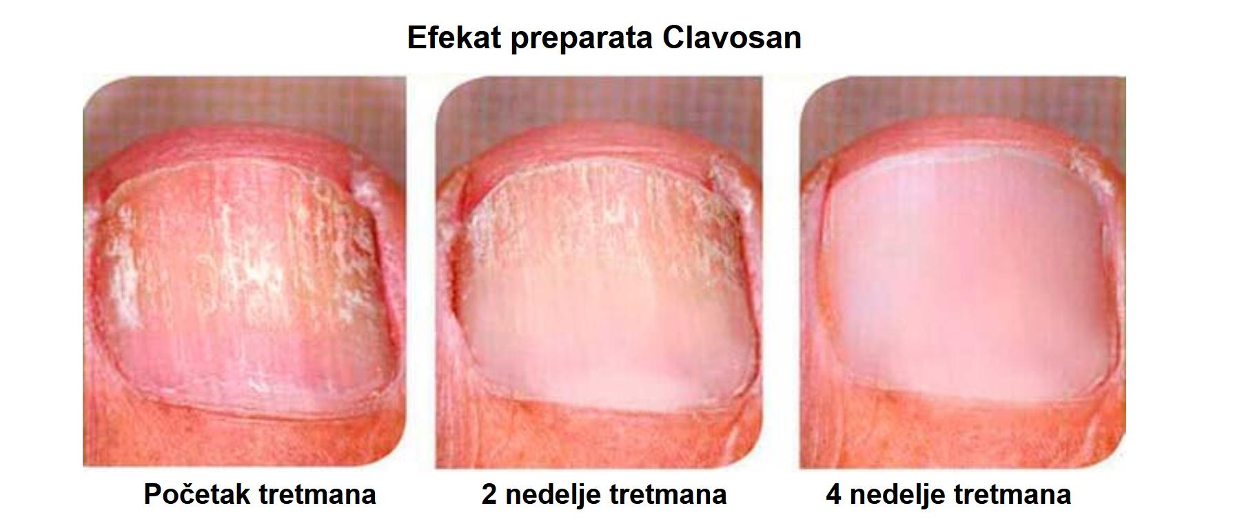 Clavosan